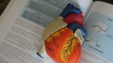Photo of How does an ECG exercise test work?