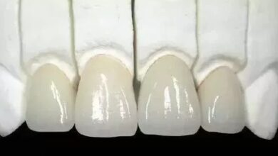 Photo of factors for the porcelain teeth life span