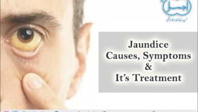 Photo of What Causes of Jaundice, Symptoms, and Treatments