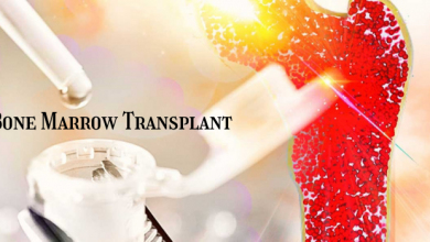 Photo of How Bone Marrow Transplant is Performed By Specialists?