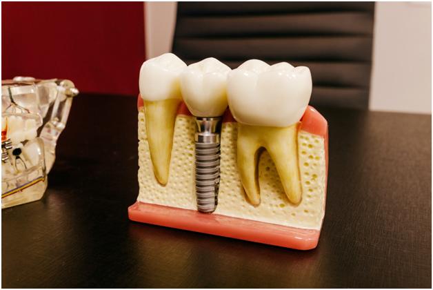 Dental Implants are Safe
