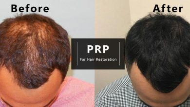 Photo of Cure your hair loss with PRP hair treatment