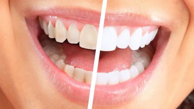 Photo of Natural Teeth Whitening At Home – 5 Methods To Consider