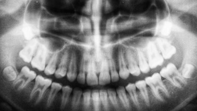 Photo of Dental Tech: How Technology Has Transformed Dentistry