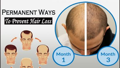 Photo of Permanent Ways to Prevent Hair Loss