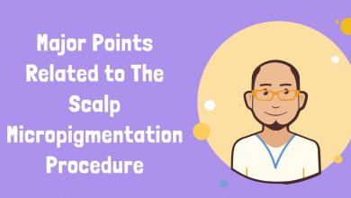 Photo of Major Points Related to The Scalp Micropigmentation Procedure
