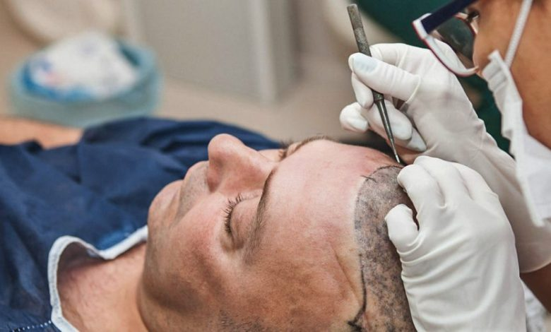 What Are The Major Advantages of FUT+FUE+BHT Hair Transplant?