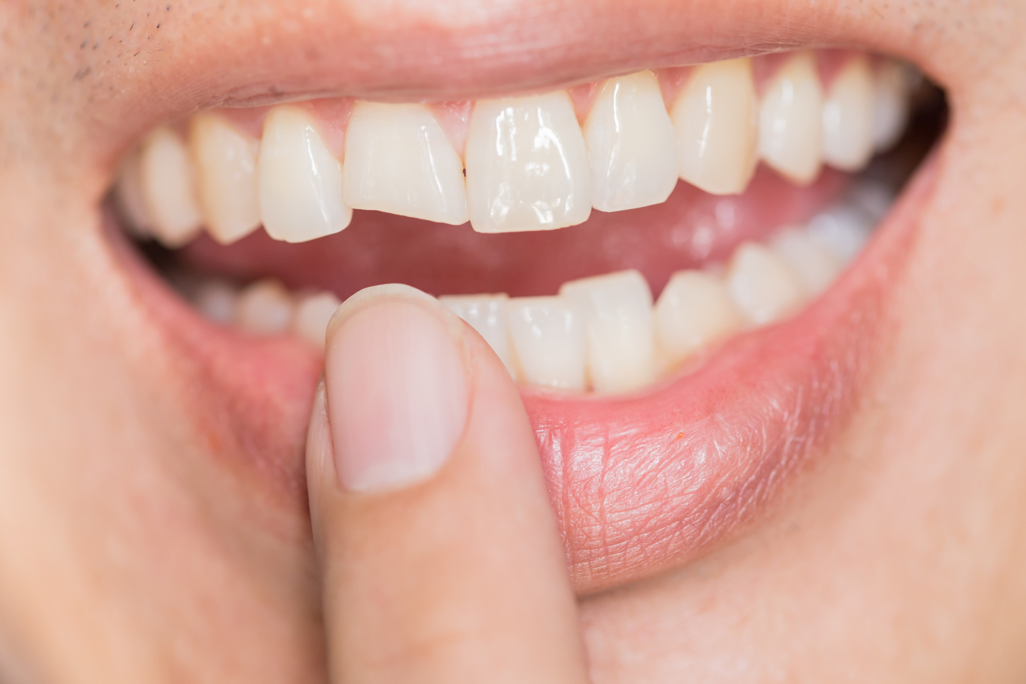 how to fix chipped teeth